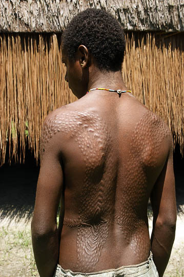 Scarifications on an initiated young man's back in Yamok, the Sepik River 2009