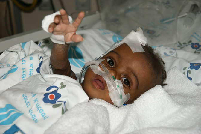 Alexandre from Angola, The Wolfson Hospital 2011